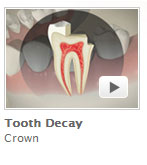 Tooth Decay Crown